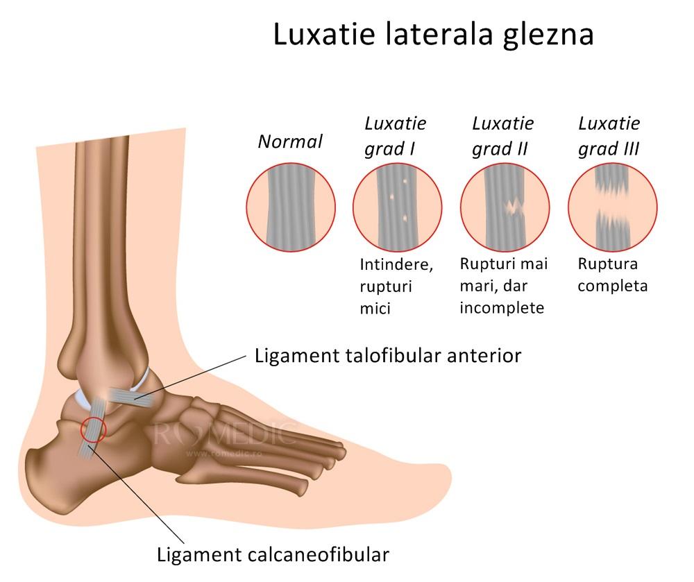luxația articulației gleznei cum se tratează artroza care deformează stadiul 1