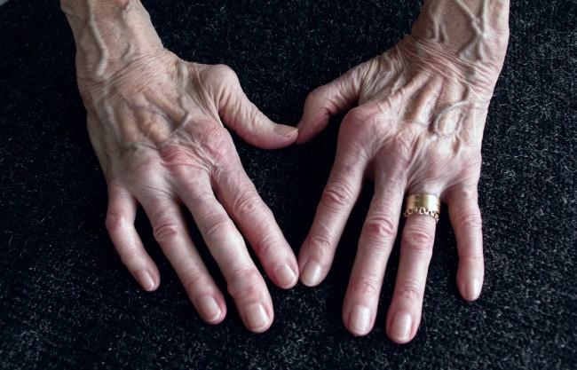 modul de identificare a artritei degetelor tratamentul mumiei de artroză cu miere