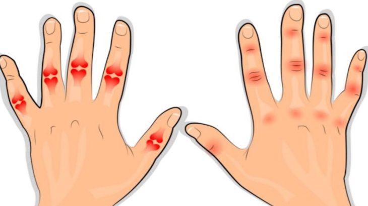 modul de identificare a artritei degetelor pentru dureri articulare la vârstnici