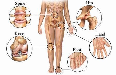osteoartroza tuturor articulațiilor decât tratarea