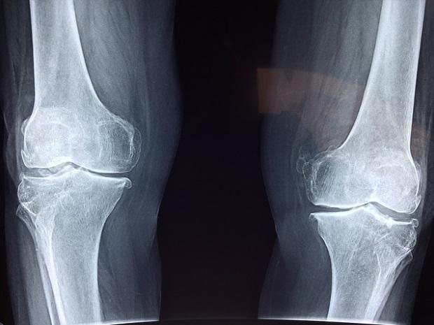 artroza femoropatelară a genunchiului tratament de întindere a genunchiului