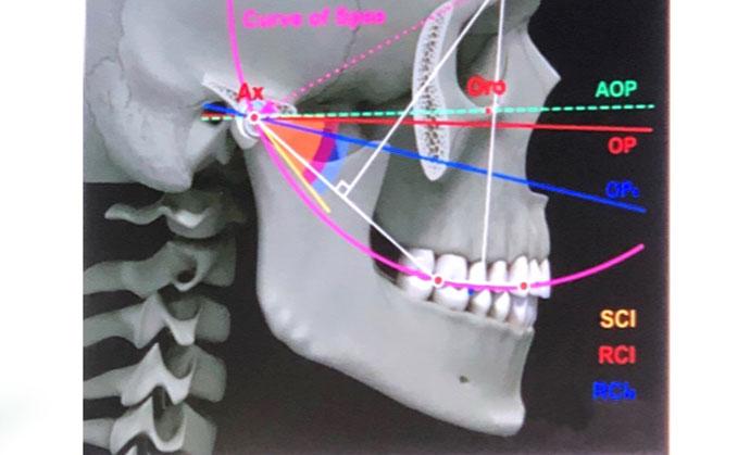 placă de durere articulară