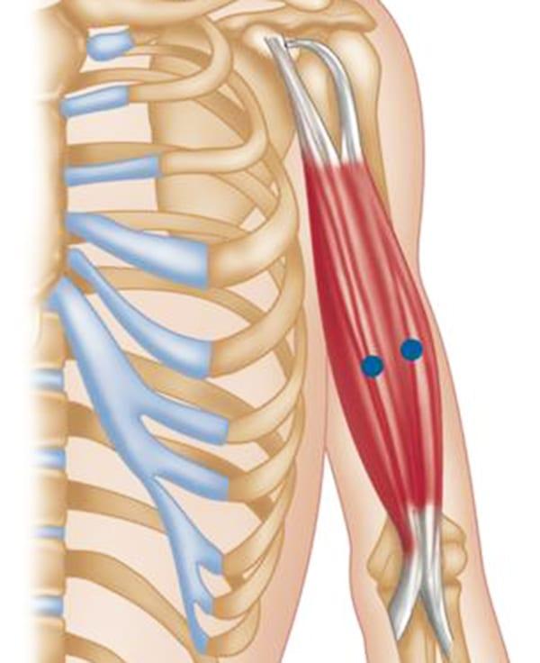 tratamentul purulent al articulațiilor genunchiului lumânări pentru durerea articulară indometacină