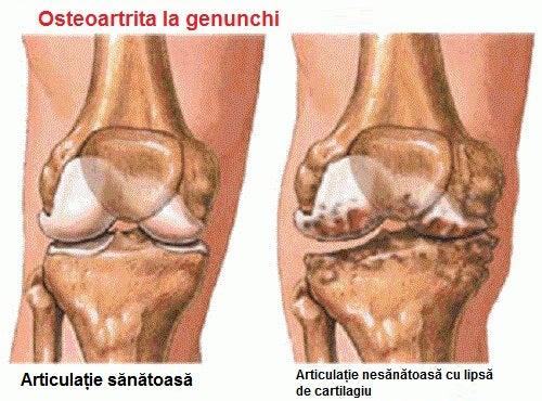 primele simptome ale artritei gleznei