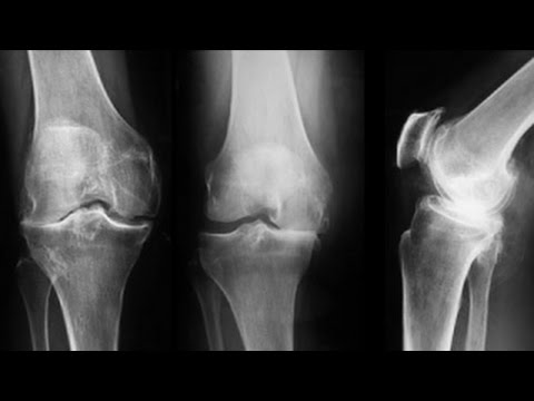 radiografia genunchiului în artroză
