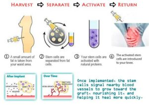 Recenzii ale tratamentului cu artroza cu celule stem