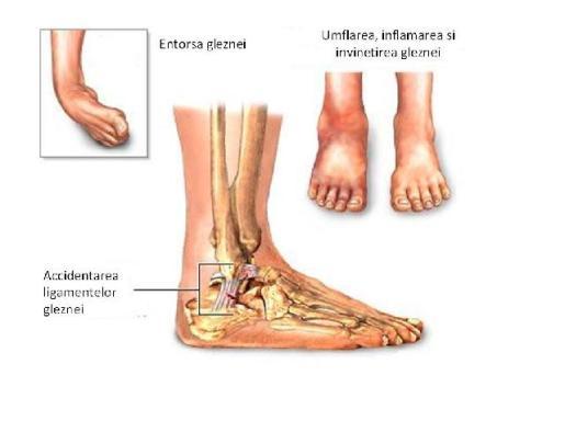 refacerea articulației gleznei după fractura piciorului