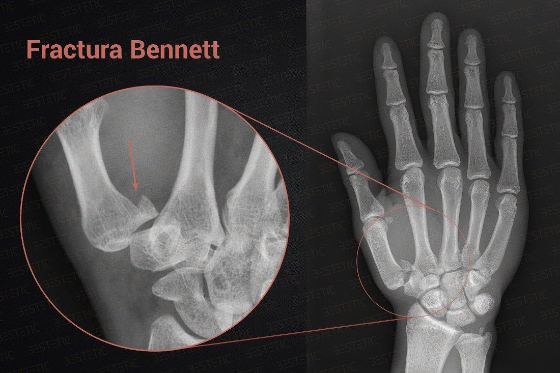 mijloace moderne de tratare a artrozei deformante cât de mult este tratată artrita articulară