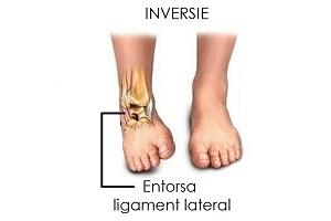ruperea ligamentelor gleznei medicamente pentru construcția cartilajelor