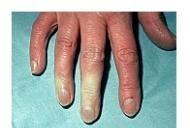 semne de boală a țesutului conjunctiv difuz