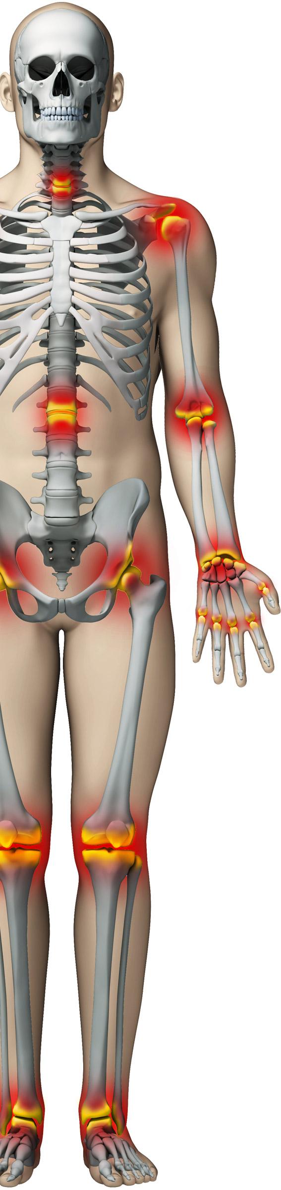 senzație de durere și frig în articulație medicamente pentru tratamentul artrozei cervicale