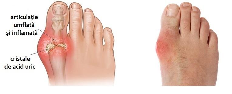 dureri la nivelul articulațiilor genunchiului când sunt presate