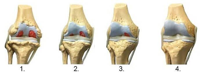 Săptămâna 39 doare articulația șoldului dureri articulare deasupra călcâiului decât pentru a trata