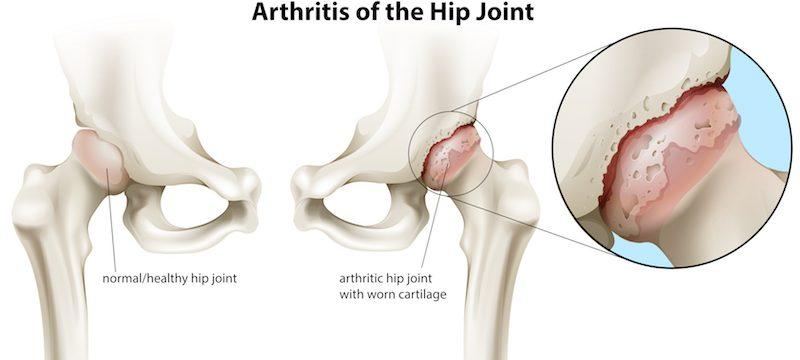sufocând artroza șoldului Artroza gradului 1 la nivelul genunchiului
