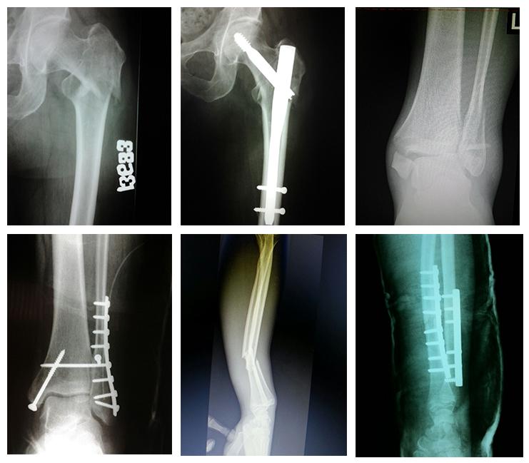 osificarea tratamentului articulației cotului bicicleta bolii articulare