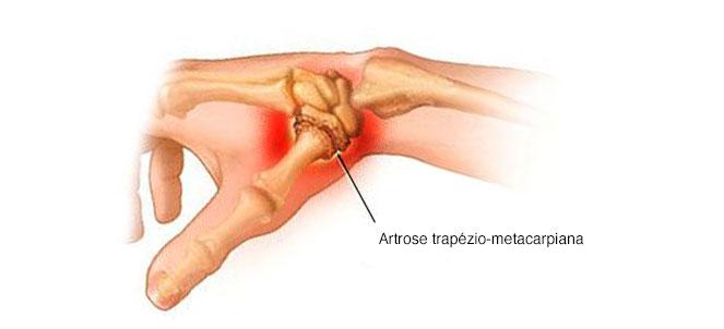 tratament articular și vascular nou în tratamentul artrozei deformante