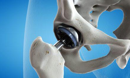 cum să dezvolți o articulație pentru artrită