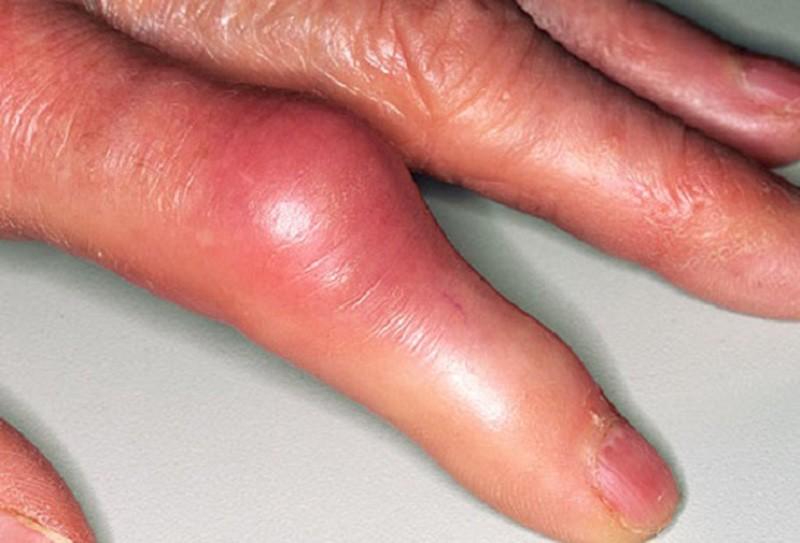 Articulația degetului inelar de pe mâna dreaptă doare