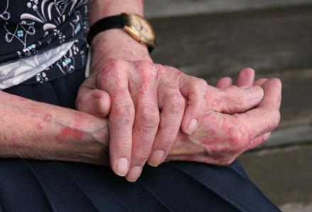 tratament cu erizipelă compresoare de durere articulare