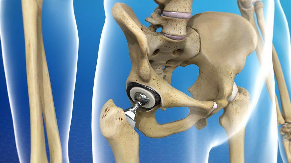 tratament dureros al articulației șoldului drept