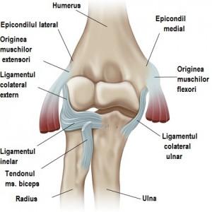 tratamentul anchilozei articulației cotului tratamentul articular în achen