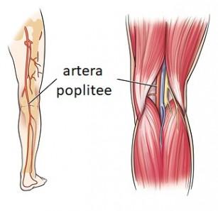 Anevrism arterial popliteal