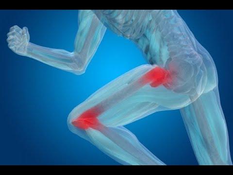 Tratamentul artrozei în balakovo