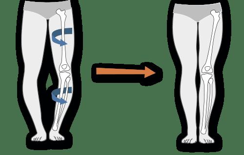 tratamentul articulațiilor false ale piciorului inferior