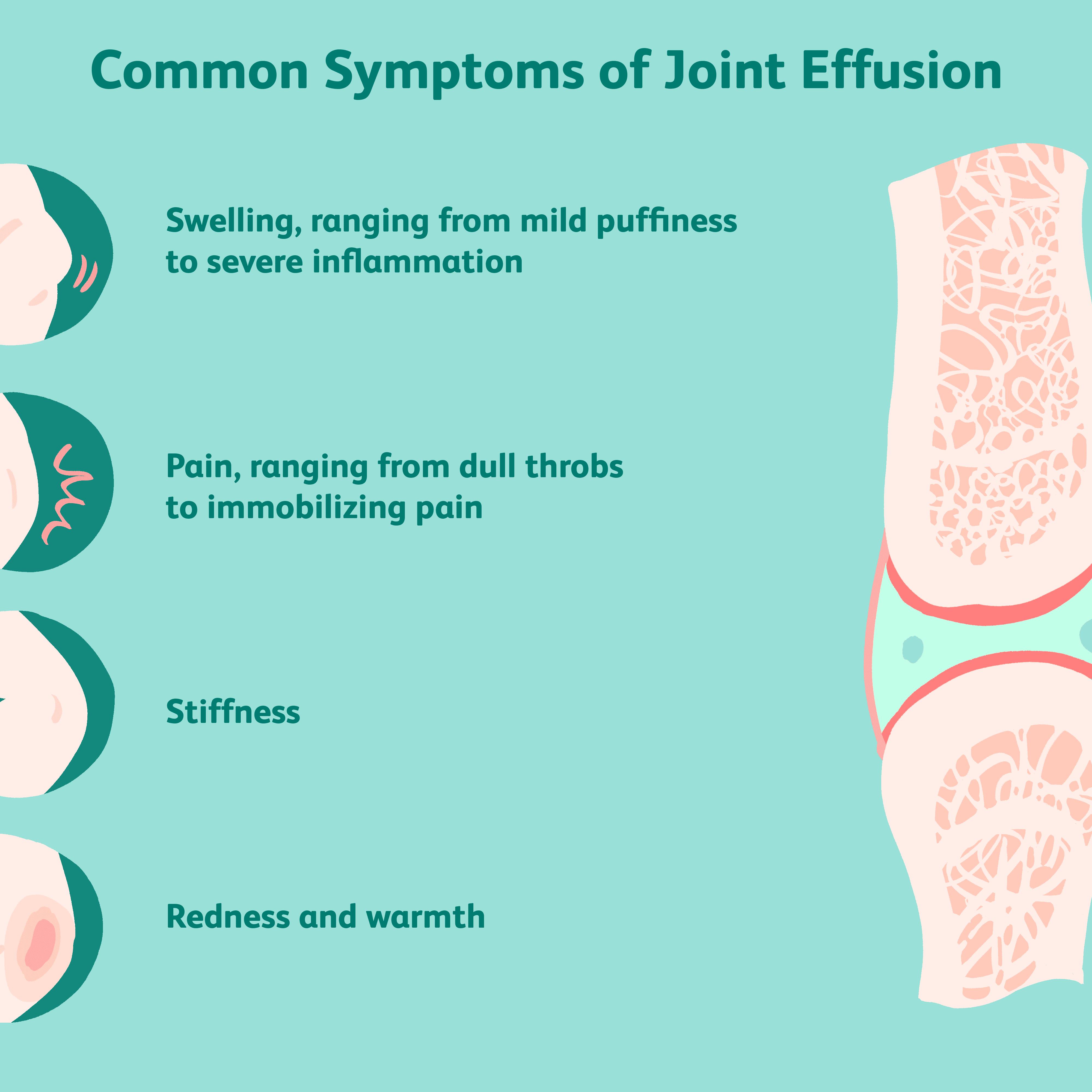 cum să tratezi articulațiile și mușchii picioarelor periartrita simptomelor tratamentului articulației umărului determină metode