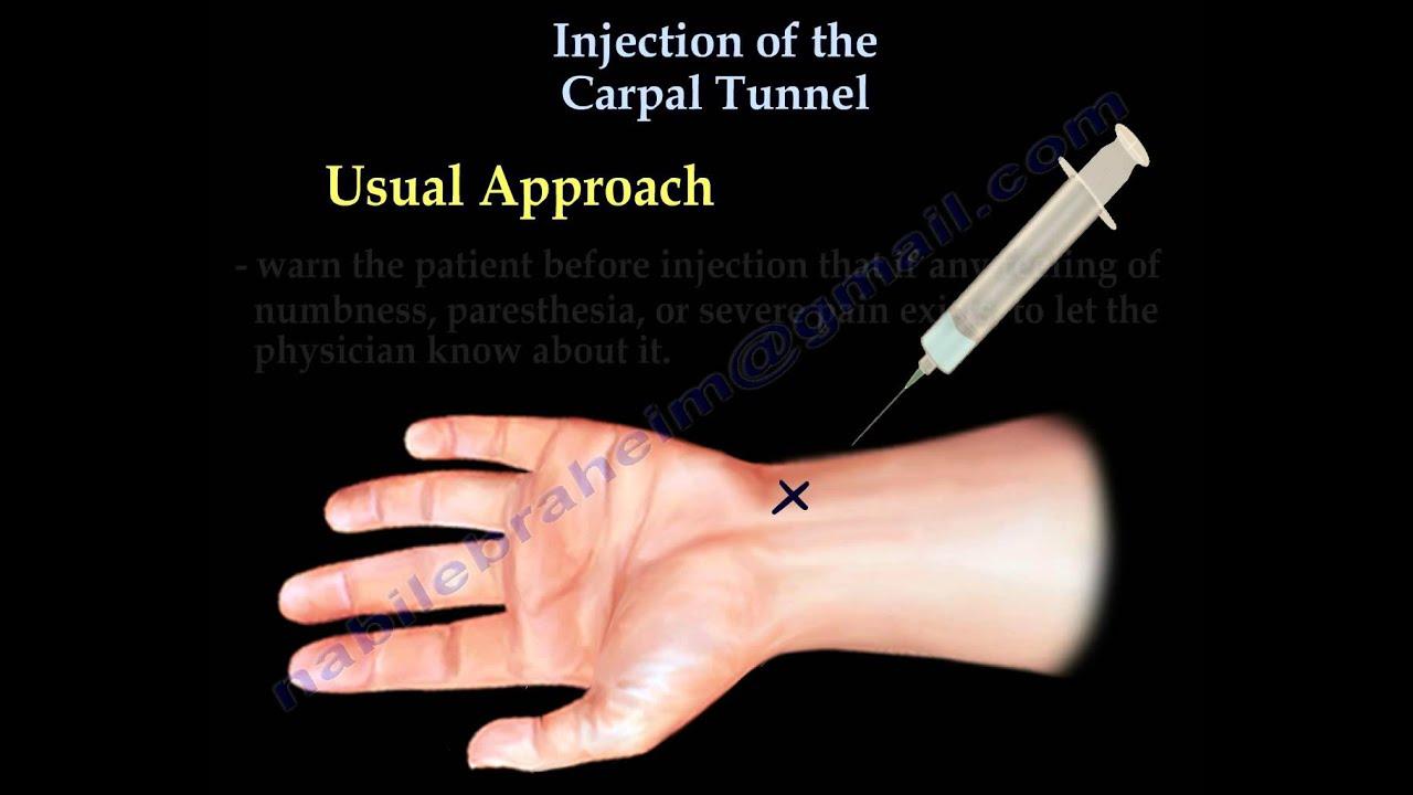 Dureri articulare - tratament cu decoct de frunze de arțar