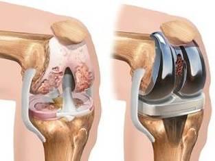 tratamentul deformării genunchiului cu artroză
