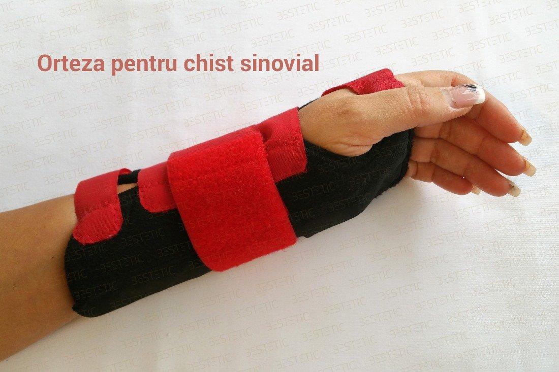 tratamentul ganglionului la încheietura mâinii