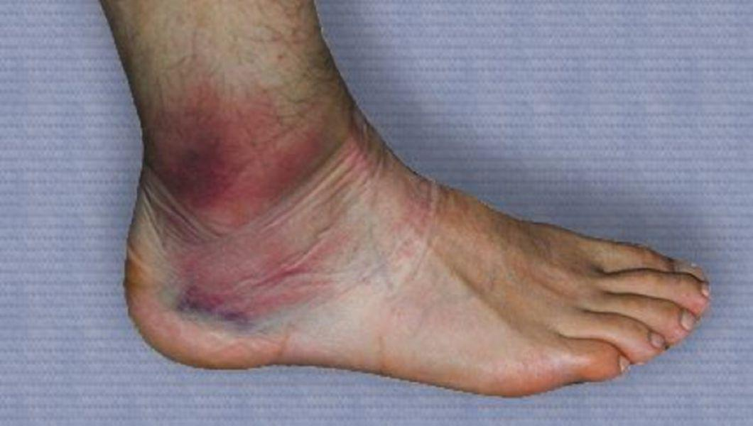 tratamentul ligamentului rupt la gleznă remediu solid fiabil