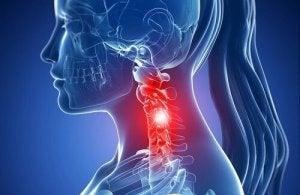 tratamentul osteochondrozei cervicale cu medicamente homeopate