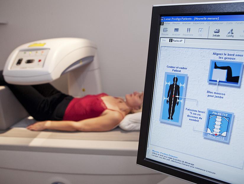 tratamentul osteoporozei șoldului