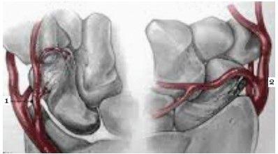 Fractura osului scafoid