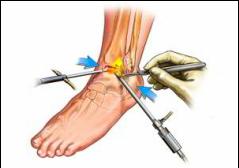 Artroza gradului de tratament al simptomelor gleznei