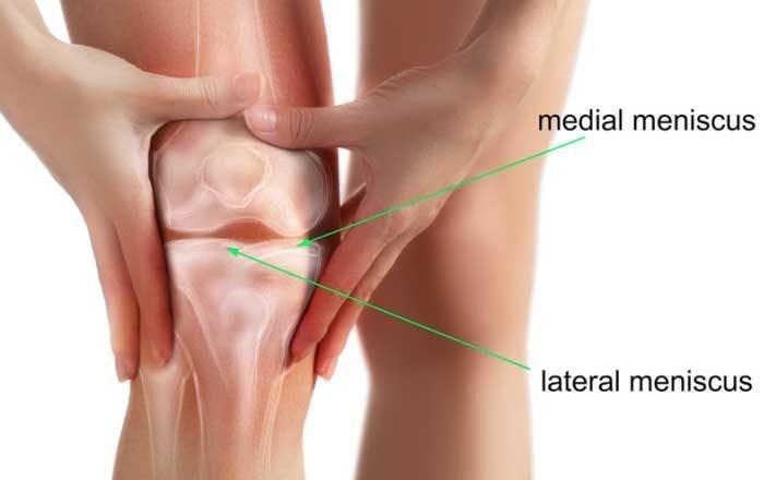 tratarea leziunilor meniscului median al genunchiului dureri musculare articulare și