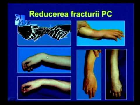 tratează abhazia articulațiilor preparate pentru ligamente și articulații într-o farmacie