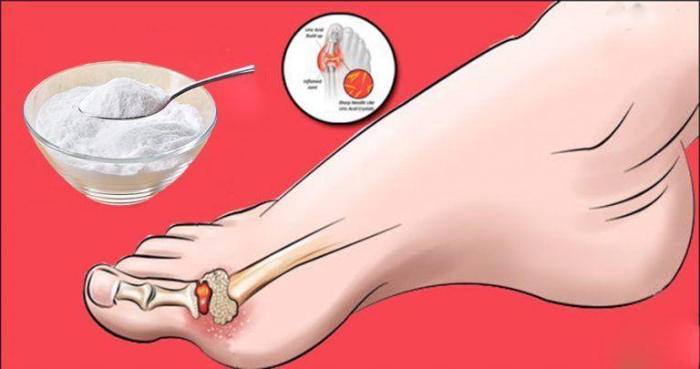 tratament eficient cu laser pentru artroză tratamentul artrozei purulente