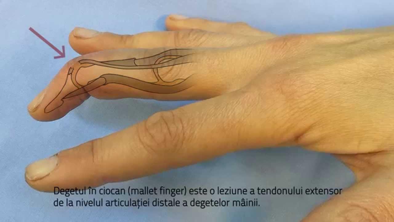 Va simtiti degetele umflate? Iata cauzele - Farmacia Ta - Farmacia Ta