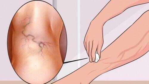 unguent de artroză articulară