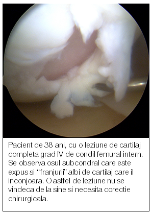 restaurarea articulațiilor cartilajelor gonartroza genunchi forum