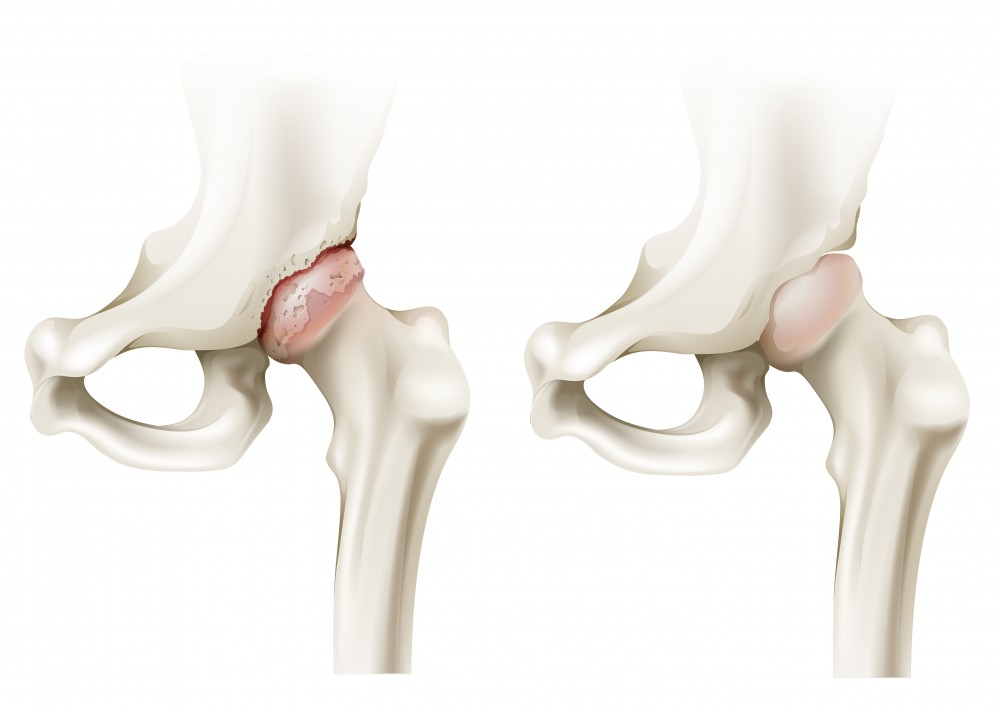 rumalon pentru artroza articulației șoldului brusture în tratamentul artrozei