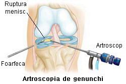articulații anti-inflamatorii de unguent dureri hepatice și articulații
