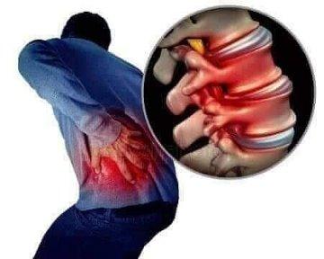 Tratament cu artroza saramura - Unde Este Simțită Durerea De Șold Artrită