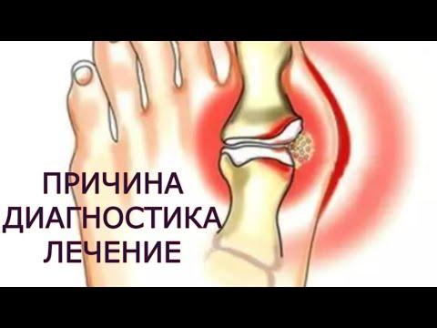 tratamentul articulațiilor false ale humerusului creșterea durerii cauzate de teraflex în articulații