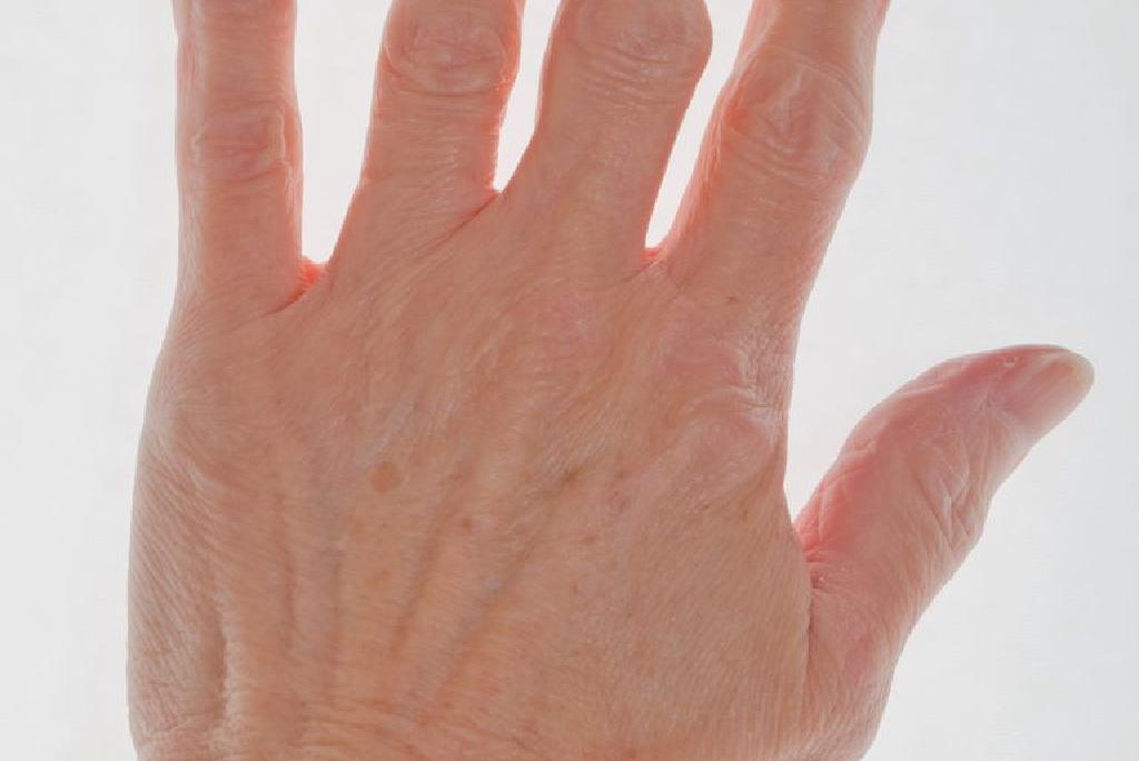 este artrita pe degetele tratate
