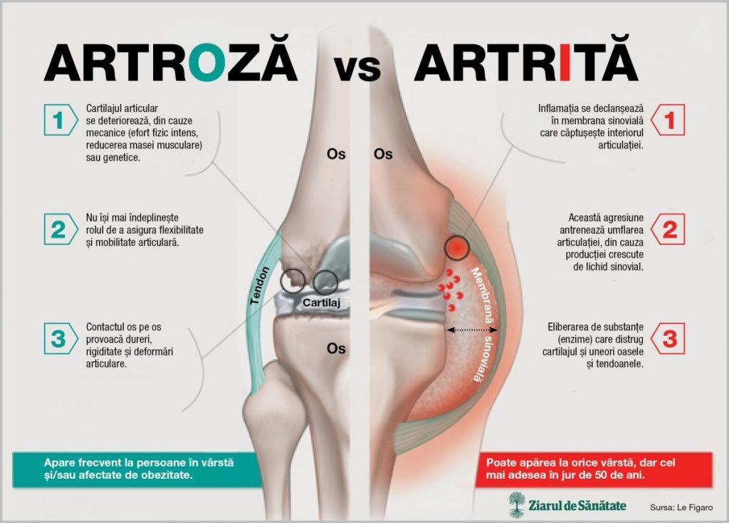 artroza și artrita și tratamentul acesteia