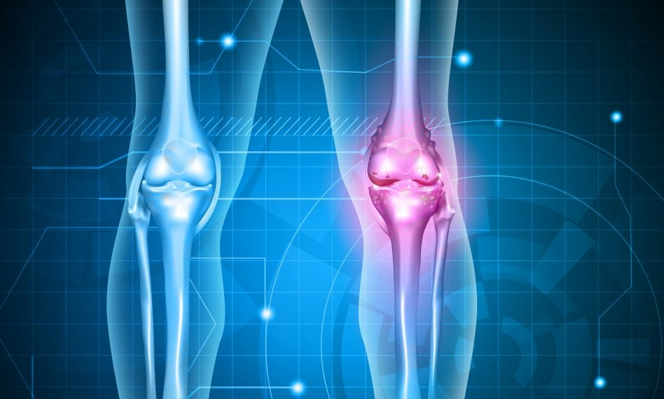 artroza tratamentului articulației genunchiului 3 grade balsamul articulației condroitinei